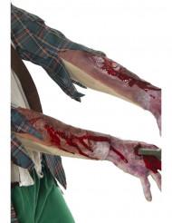 Oäkta sår underarm