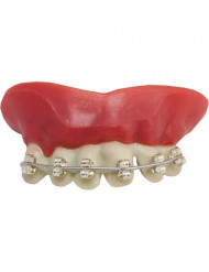 Löständer med tandställning